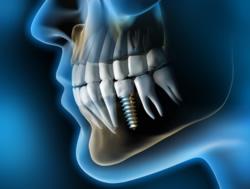 Während der Einheilung des Implantats muss gewährleistet sein, dass sich kein Bindegewebe zwischen Knochen und Implantat setzt.