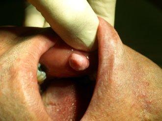 Innenliegende Fibromatose im Mundraum