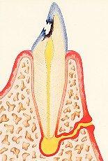 Fistelgang an Zahnwurzel