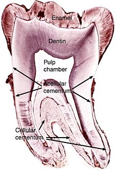 Der natürliche Wurzelzement ist in vier verschiedenen Formen im Zahn enthalten und jede Art des Zahnzements erfüllt eine eigene Aufgabe.
