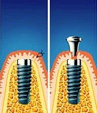 Nach dem Einbringen des Implantats verschließt der Zahnarzt es speichelfest mit einer Schleimhautkappe.