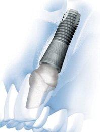 Ein Einzelzahnimplantat im Frontzahnbereich hat die Besonderheit, dass hier ein besonders schmales Implantat zum Einsatz kommen muss, um die benachbarten Zähne nicht zu beschädigen.