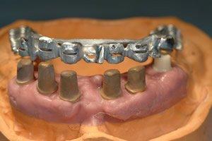 Können nicht genügend Zahnimplantate in den Kiefer gebracht werden, wegen finanzieller Gründe oder Knochenschwund, so können Prothesensättel dieses Problem überbrücken.