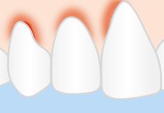 geschwollendes Zahnfleisch
