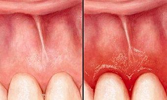 Der Zahnfleischrückgang kann entweder durch verlorene Zähne bedingt sein oder durch Bakterien hervorgerufen. Er kann behandelt und aufgehalten werden.