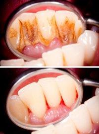 Vor und nach einer Behandlung