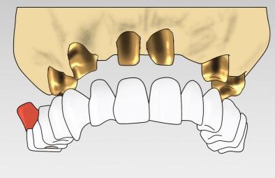 Teleskopkronen sind tatsächlich Doppelkronen. Sie werden aus dem Innenteleskop und dem aufgesteckten Zahnersatz zusammengesetzt.