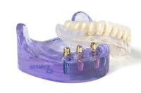 Klassische Zahnprothesen bergen Probleme im alltäglichen Gebrauch, da sie das Zahnfleisch reizen und verrutschen können. Die Implantatgetragene Prothese bietet mehr Halt.