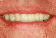 Lächeln mit Implantat