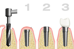 Vor der Implantation steht immer die Anamnese, damit der Zahnarzt über Vorerkrankungen und Ihre Medikamentierung informiert ist.