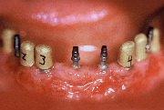 Interimsinplantate werden als Provisorium eingesetzt, bis das Implantat nach der Heilung mit dem finalen Zahnersatz versorgt werden kann.