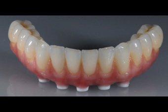 Implantatprothesen ersetzen große Teile der fehlende Zähne und ermöglichen sicheren Halt.