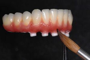 Implantatprothese bietet eine stabilere Kaufunktion