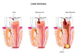 Zahnfäule entsteht als Ergebnis von Stoffwechselprodukten von Bakterien, die die Zahnhartsubstanz angreifen.