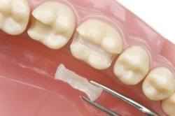 Keramikinlay - Ästhetisch perfekter Zahnersatz