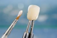 Keramikschichtung für Zahnkrone