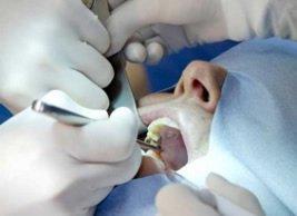 Ambulantes Operieren in der Kieferchirurgie
