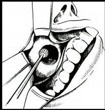 Die chronische Osteomyelitis bedarf zumeist eines chirurgischen Eingriffs. Die Radikalität der Behandlung kann variieren.