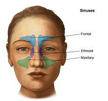 Dumpfer Schmerz und Druck in der Stirn oder neben der Nase.