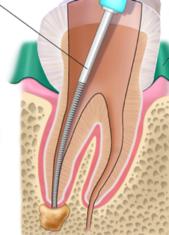 Entfernung des gesamten Nervs bei Wurzelbehandlung