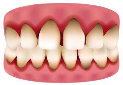 Knochenschwund durch Osteoporose ist eine Volkskrankheit. Die Befürchtung, dass diese Krankheit zu Zahnverlust führt, ist aber unbegründet.