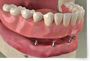 Zahnersatz auf eingeheilten Implantaten verankert