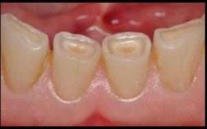 Abrasion der Zähne