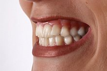 Zähneknirschen kann durch Streß entstehen