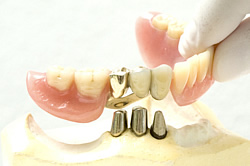 Deckprothese - Cover-Denture-Prothese