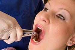 Durch Hebelwirkung zieht der Zahnarzt bei der Extraktion einen oder mehrere Zähne, wodurch eine weitgehende Operation vermieden werden kann.