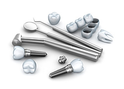 Dass ein Implantat gut in den Knochen einwächst ist von größter Wichtigkeit, damit der Patient es nicht über kurz oder lang verliert.