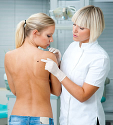 Die Buchstaben ABCDE stehen für die Anhaltspunkte, nach denen Hautkrebs diagnostiziert werden kann.