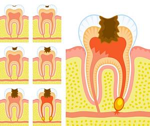 Eine unbehandelte Karies kann zu einem toten Zahn führen.