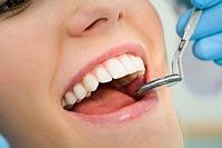 Eine qualifizierte Dentalhygienikerin kümmert sich in der Praxis um Vorsorgebehandlungen und übt mit dem Patienten die richtige Reinigungstechnik für das Zähne putzen zu Hause ein.