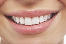 Keramikschalen bieten eine einfache und schmerzlose Möglichkeit, seine Zähne zu verschönern.