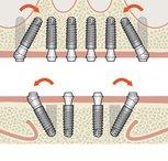 Mit KIPP Implantat Knochenaufbau und Implantation in einem Schritt