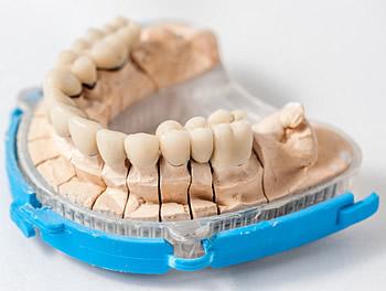 Der Zahnarzt kann beispielsweise durch die richtige Anpassung von Prothesen und Zahnersatz Sprechfehler beheben.