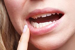 Wenn da Zahnimplant schmerzt, kann sich dies zudem durch Schwellungen, Taubheitsgefühle oder Blutungen äußern.