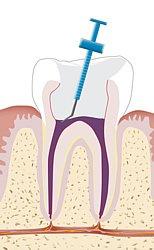 Toter Zahn mit Wurzelfüllung