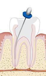 Beschwerden nach eine Wurzelkanalbehandlung müssen umfassend zahnärztlich abgeklärt werden.