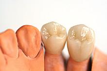 Zahnabdruck vom Zahnarzt ohne Würgereiz