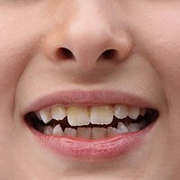 Erosionen der Zähne durch säurehaltige Lebensmittel