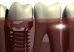 Der Zahnarzt minimiert die Risiken der Zahnimplantation durch verschiedene Methoden.