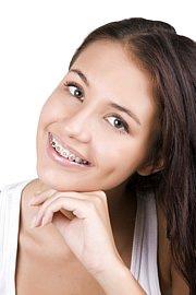Schiefe Zähne durch Zahnfehlstellungen entsprechend ebenfalls nicht dem Ideal schöner Zähne. In der Kieferchrirugie gibt es Möglichkeiten sogar mit sehr unauffälligen, unsichtbaren Zahnspangen, die Zähne zu begradigen.