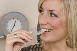 Unsichtbare Zahnspange nachträglich ermöglicht eine ästhetische Optik.