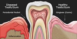 Zahnfleischtaschen werden in echte und Pseudotaschen unterschieden. Letztere entstehen durch geschwollenes Zahnfleisch.