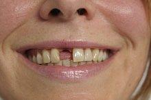 Zahnlücke in den Vorderzähnen