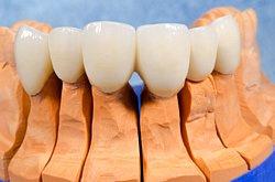 Durch die stetige Weiterentwicklung des Zirkons für die Zahnmedizin, ist Zahnersatz aus Zirkon inzwischen äußerst stabil