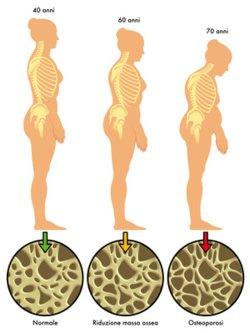 Viele ältere Menschen erkranken an der Volkskrankheit Osteoporose. Sie führt zu Knochenschwund im ganzen Körper, somit auch im Kieferbereich.