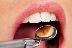 Bei der Parodontitis handelt es sich um eine ansteckende Infektionskrankheit.